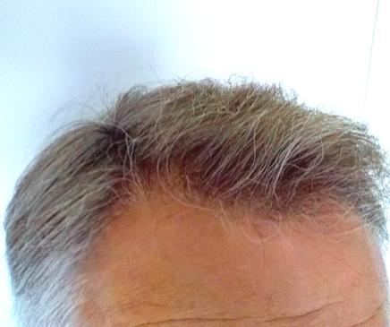 greffe-cheveux-nantes