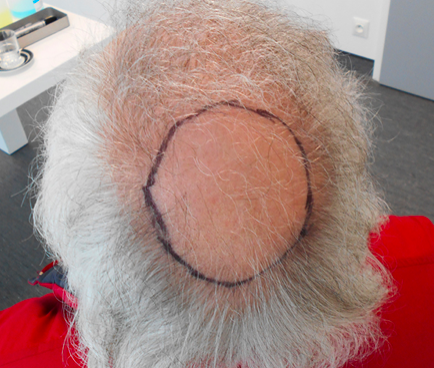 greffe cheveux vendee