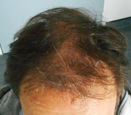 greffe cheveux carquefou