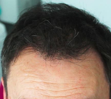 greffe cheveux nantes