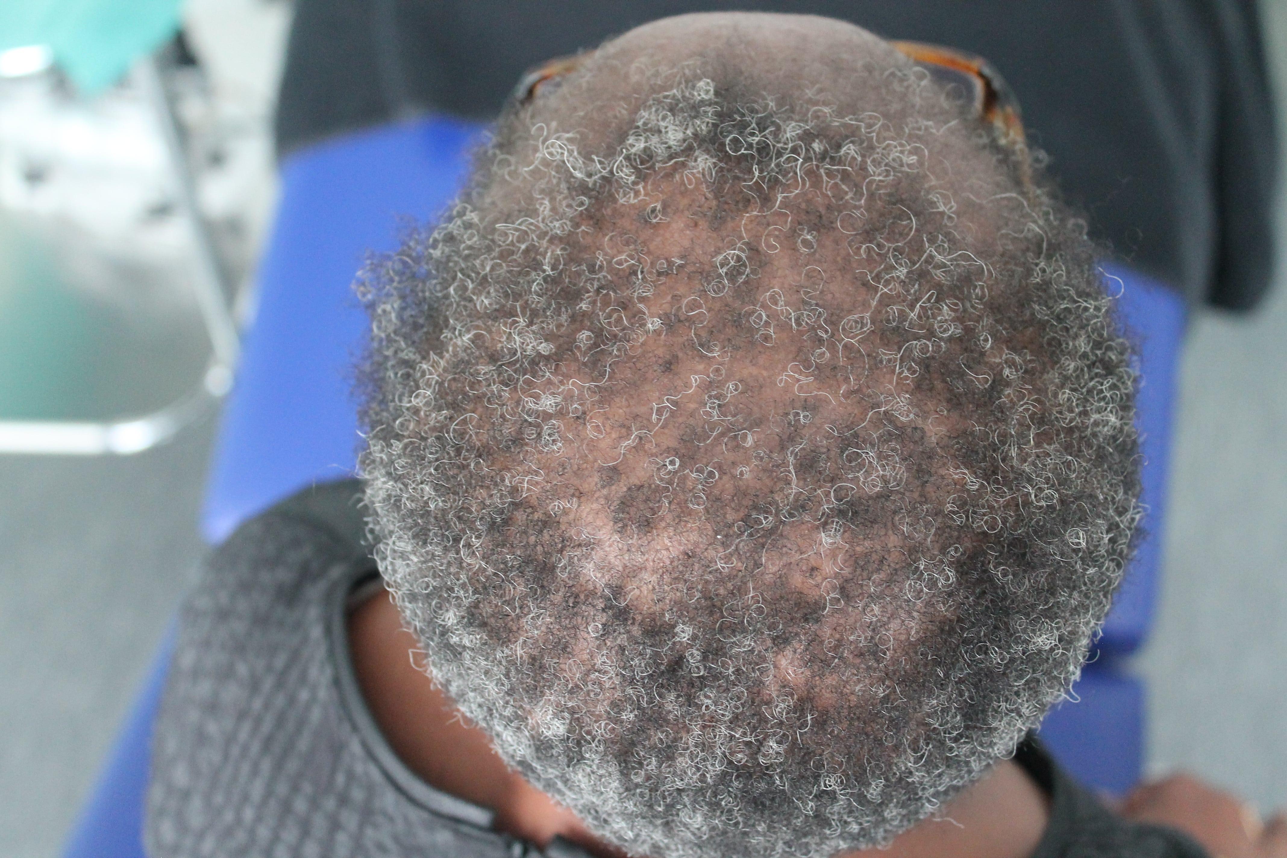 greffe cheveux 1