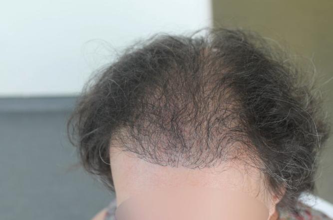 greffe cheveux femme