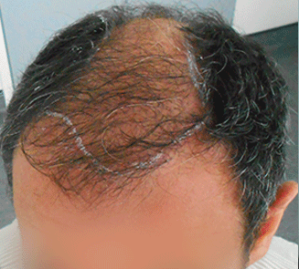 alopecie homme